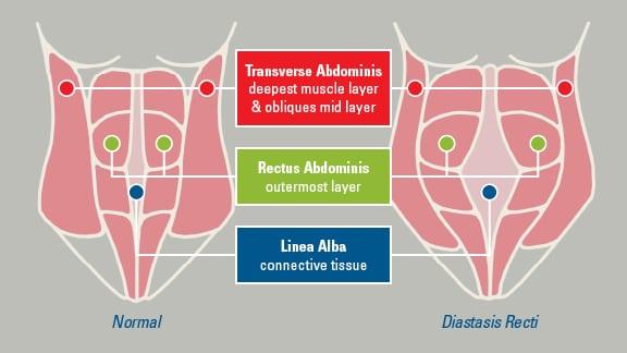 Back To Pre Baby Body Tackling Diastasis Recti